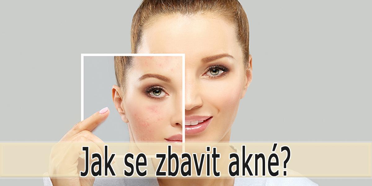 Jak se zbavit akné?