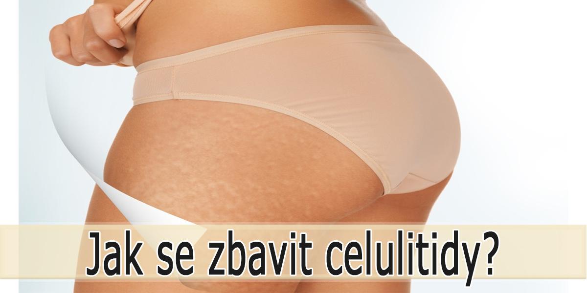 Jak se zbavit celulitidy