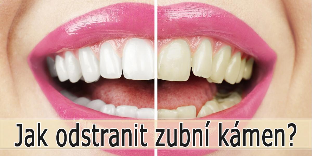 Jak odstranit zubní kámen doma?